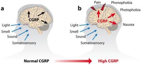 migraine_biotechcgrp_europe_cure_pharma